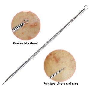 Image 4 - Herramienta removedor de espinillas de puntos negros, agujas para exprimir acné, cuchara para limpieza facial, Extractor de comedones, limpiador de poros