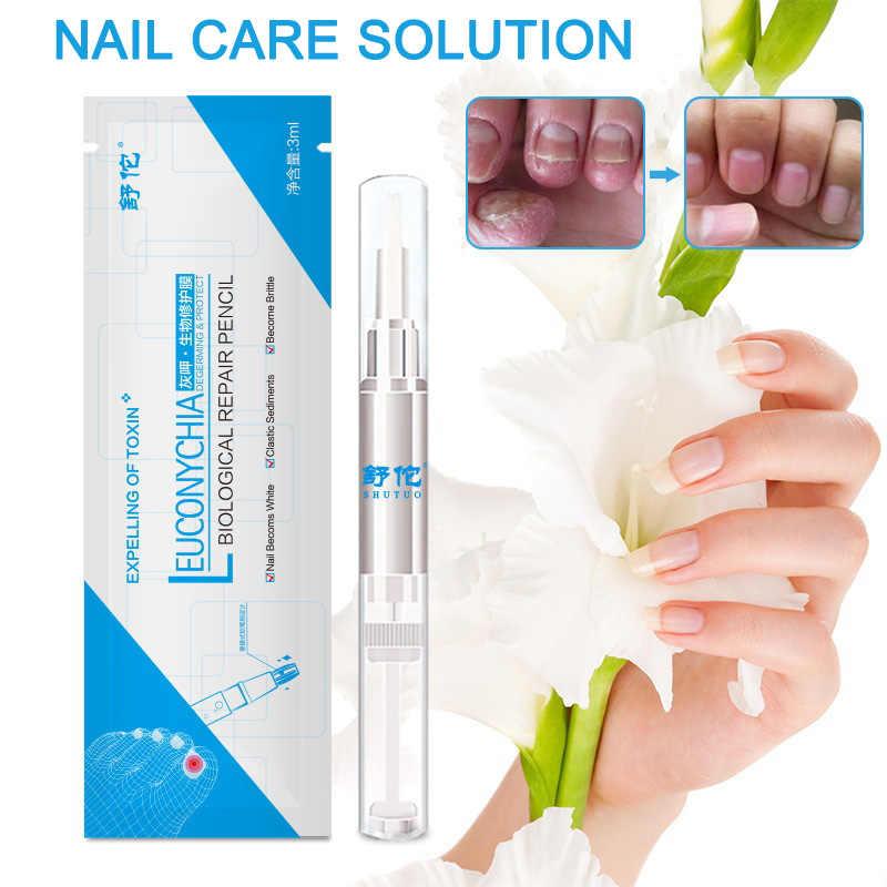 عرض ساخن 3 مللي علاج فطريات الأظافر السائل المضاد للفطريات إصبع القدم العناية بالأظافر