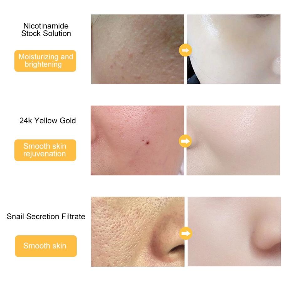 Купить с кэшбэком LAIKOU 24k Gold Face Serum Hyaluronic Acid Serum Moisturizer Essence Cream Whitening Day Creams Anti Aging Anti Wrinkle Acne Art