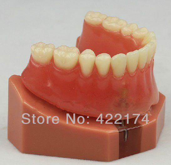 цены Free Shipping Over denture inferior with 2 implants dental tooth teeth dentist dentistry anatomical anatomy model odontologia