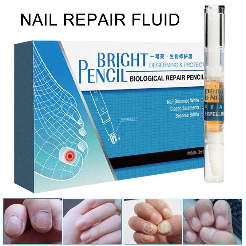Aliexpress.com : Buy New 3ml Nail Fungus Treatment Liquid Anti ...