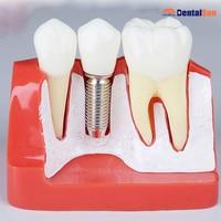 Dental Implant Repair Teeth Model M2017R/Dental Implant Teeth Model
