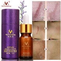 2018 Scar Repair Skin Essential Oil Lavender Essence Skin Care Natural Pure Remove Ance Burn Strentch Marks Scar Removal 10ML