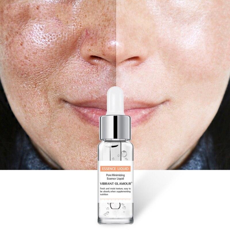 Remove Pimples Blackheads Pores Shrinking Essential Liquid Salicylic Acid Solution Pores Shrink Serum