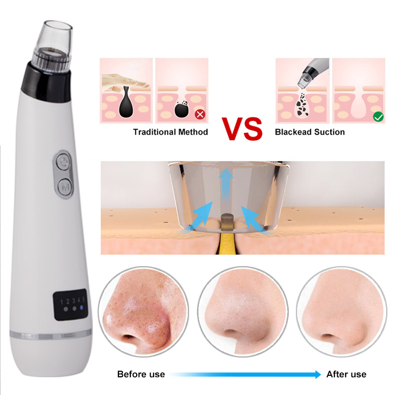 Image 3 - ROSALIND Blackhead Remover Facial Vacuum Pore Cleaner Face Skin Care Pimple Remover Nose Acne Comedo Suction Spot CleanerFace Skin Care Machine   -