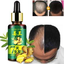 Fashion 7 Days Hair Growth Care Ginger Essential Oil Nourish