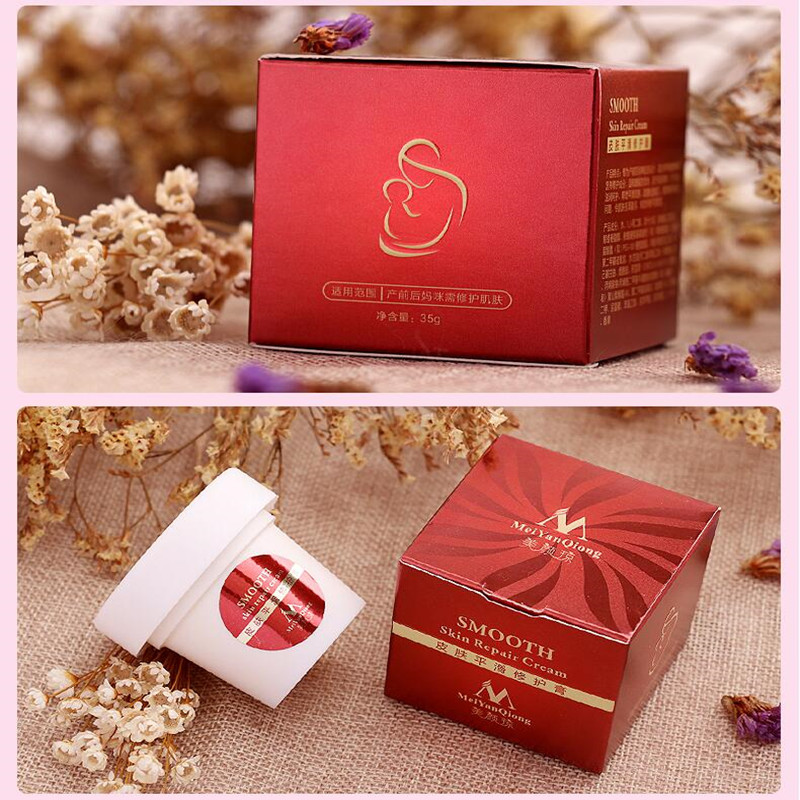 Meiyanqiong Precious Skin Body Cream Stretch Marks Remover And Scar Removal Powerful Postpartum Obesity Pregnancy Face Cream