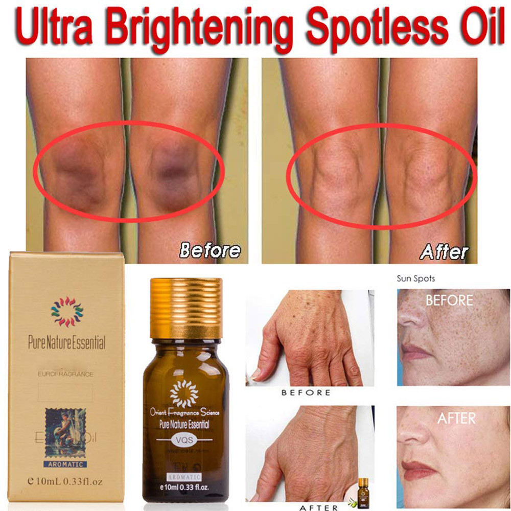 10ML 2PCS Pure Natural Essential Ultra Brightening Spotless Oil Dark Spots Fade Away Age Spots Hyper Pigmentation Essential Oil(China)
