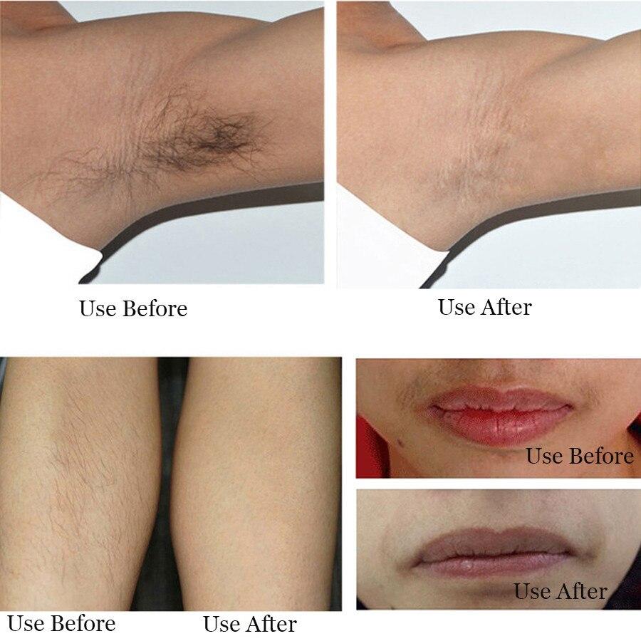 Electric Epilator Laser Hair Removal Epilatore Women Shaver Hair Removal  for Bikini Lady Shaver Shaving Machine-in Epilators from Home Appliances on  ...
