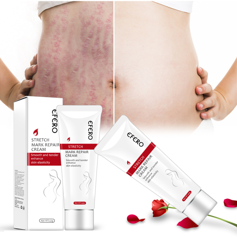 Scar Removal Face Cream Skin Smooth Repair Cream Skin Care Moisturizing Soft Skin Body Cream Postpartum Stretch Marks TSLM1