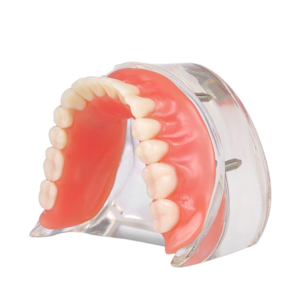 Modèle d'étude des dents dentaires prothèse dentaire intérieur mandibulaire mâchoire inférieure dents mandibulaires modèle 4 Implant pour l'enseignement des dents