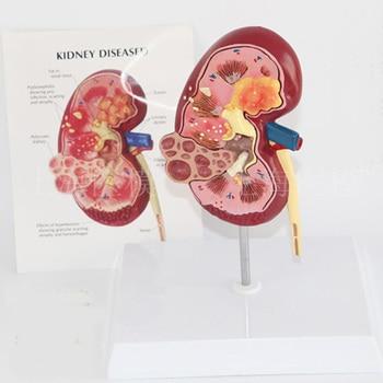 Kidney disease model urology kidney nephron glomerular kidney model renal anatomy model free shipping фото
