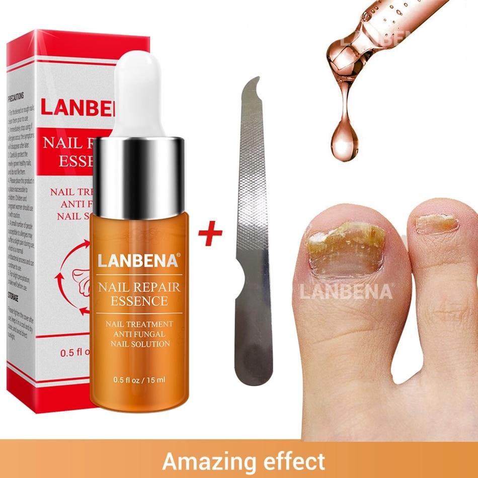 LANBENA Curing Nail Fungus Treatment Essence Oil 15ml Antifungal Nail Killer Toe Finger Fungus Removal Feet Care Onychomycosis Онихомикоз