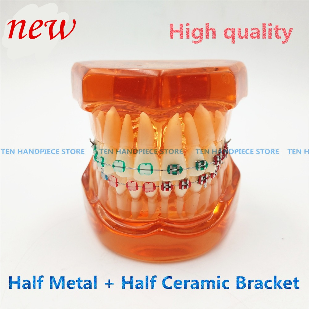 2018 good quality Teeth model With metal & ceramic brackets Irregular tooth Ortho Metal dentist patient student learning model orthodontists model with metal