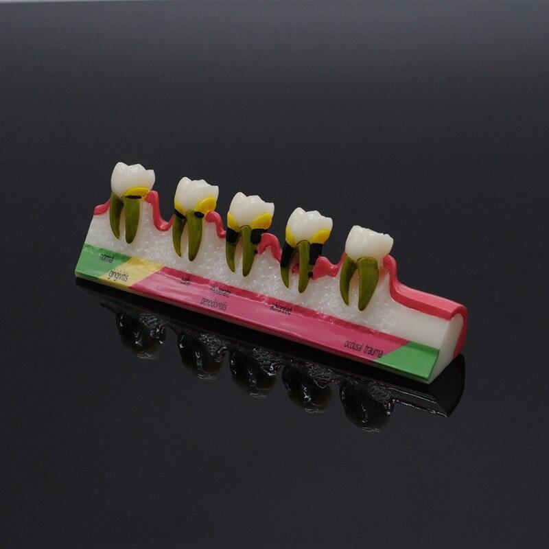 Modèle d'enseignement de la dentisterie parodontale pour la clinique dentaire