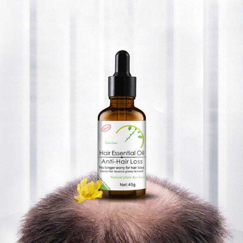 Fast Powerful Hair Growth Essence Products Ginger Essential Oil Liquid Treatment Preventing Hair Loss Hair Care for Man Woman