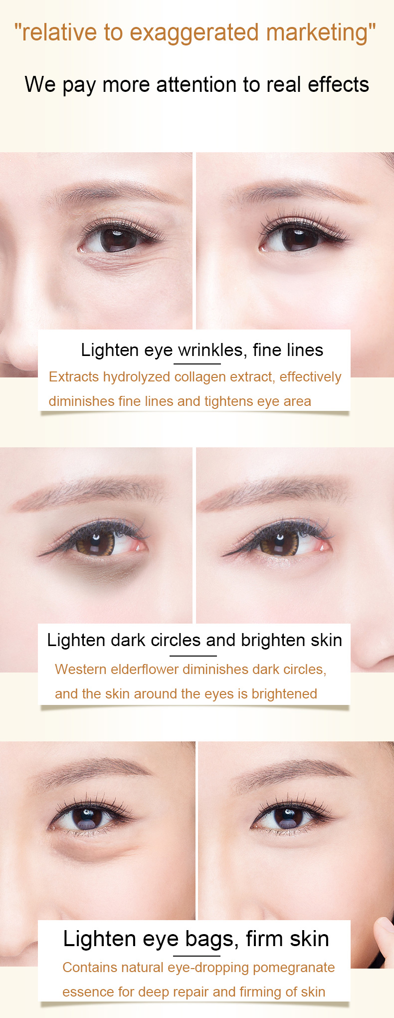 Korea-Skin-Care-Remove-Dark-Circles-Eye-Cream-Treatment-Eye-Bag-Moisturizing-Firming-Serum-Day-Night-Cream-eye-mask-patch-20g_05