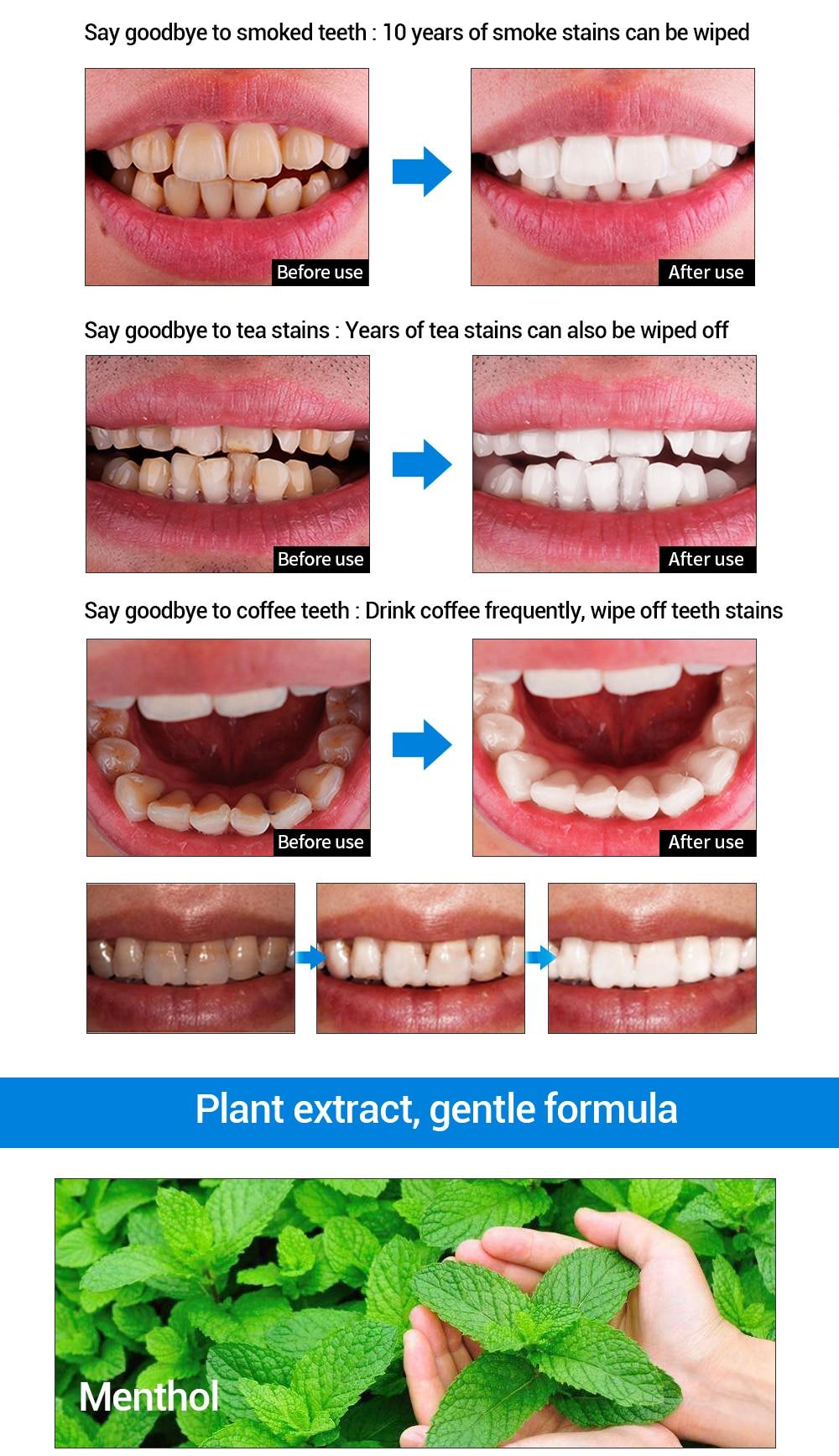 Serum Lanbena Zähne Bleaching Essenz Pulver Oral Hygiene Reinigung Serum Entfernt Plaque Flecken Zahn Bleichen Dental Werkzeuge Zahnpasta