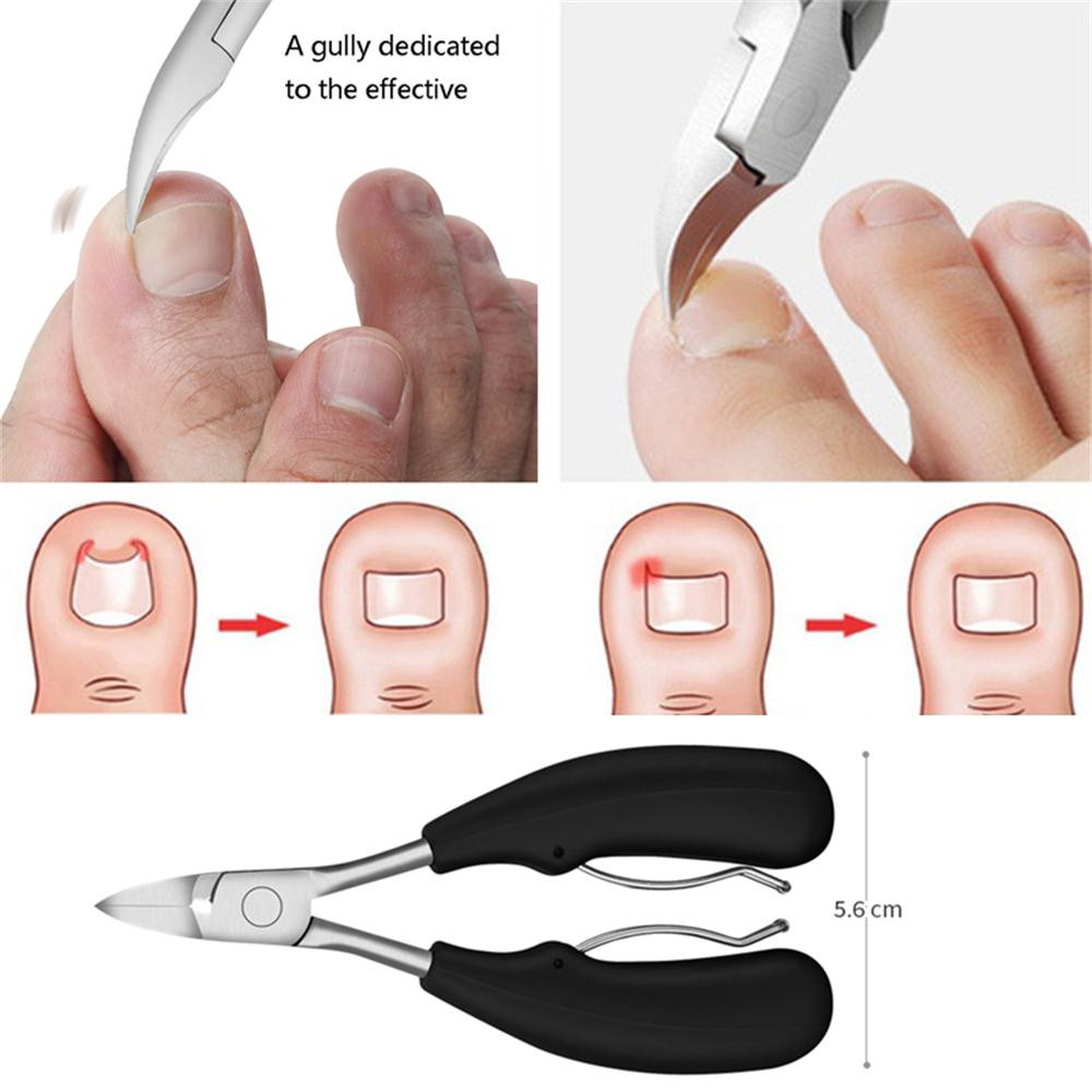 Eagle Mouth Hook Inflammation Nail Correction Pliers Scissors Scissors Dead Skin Dirt Remover Foot Disease Pedicure Tool#