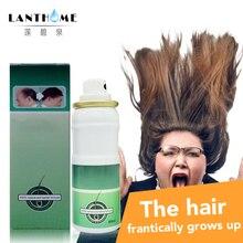 Lanthome 3bottles bald hair growth pilatory extra strength Sunburst alopecia hair growth treatment stop hair loss products