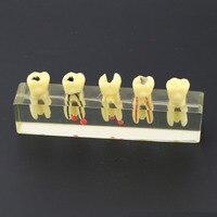 Dental Endodontic Treatment Demonstration Model 4012 Study Teach Teeth Model