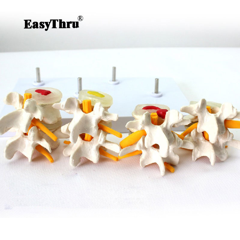 Demonstration Model Lumbar Vertebral Spine Model Pathological vertebrae model Quadrilateral lumbar disease model medical art