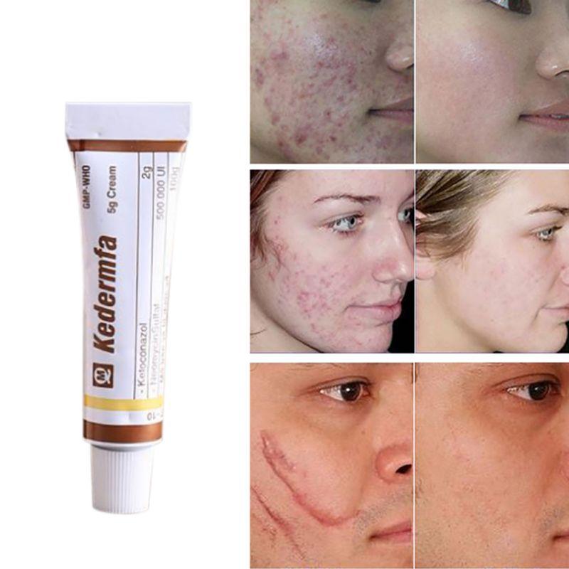 Profession Vietnam Snake Oil Remove Scar Cream Body Face Nourishing Cream Female Pigmentation Corrector Women Skin Care