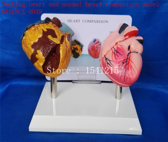 Human heart model Medical teaching model Smoking heart and normal heart comparison model-GASENCX-0039