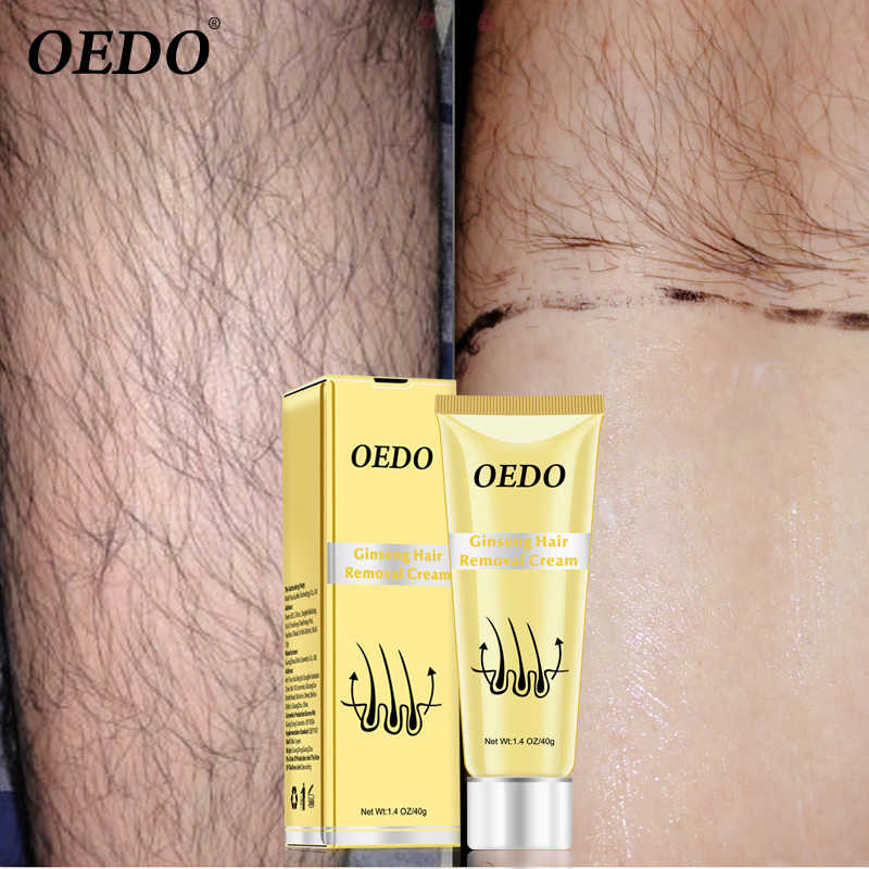 Detail Feedback Questions About Ginseng Body Hair Removal Cream For