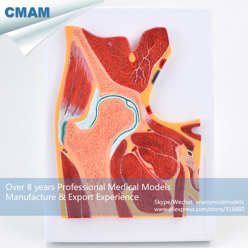 No. 12711 , Hip Joint Section, Medical Science Didactic Joint and Extremities Model , CMAM china medical anatomical models no 12314 hip and femur bone model of orthopedics implantation practice cmam china medical anatomical models