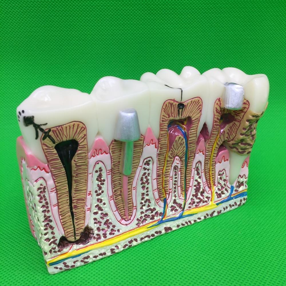Modèle d'enseignement des pathologies communes des dents dentaires, dentiste dentaire pour l'enseignement des sciences médicales