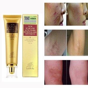 Emporiaz Repair Face Cream Acne Scar Removal Cream Facial Scrubs & Polishes