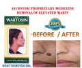 Herbal Wart Remover Elevated Mole Skin Tag Removal Free Shipping
