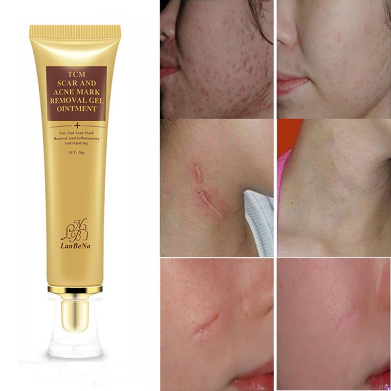Acne & Blemish Treatments Health & Beauty 30g Lanbena Acne Scar Removal Cream Skin Repair Face Cream Acne Treatment Ly