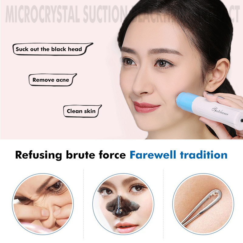 Electric Facial Pore Cleanser Spot Cleaner Face Blackhead Acne Remover Vacuum Comedo Suction Remover Face Skin Care Tool