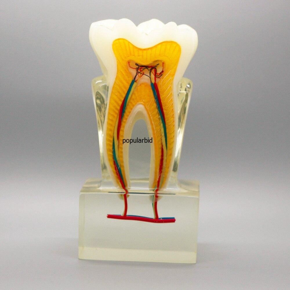 Dental Model #4019 01 - Anatomical Molar Model lower molar with one root model molar teeth model dental model