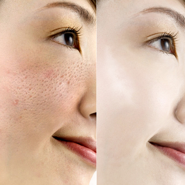 ROREC serum facial Hyaluronic Acid essence face serum Skin Care shrink pores Anti Aging Intensive Lifting Firming Anti Wrinkles