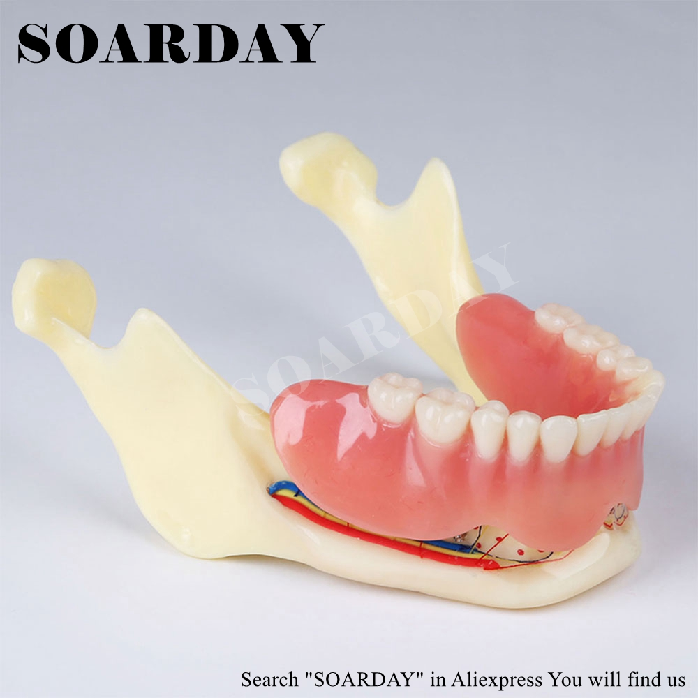 High Quality Resin Lower Jaw Denture Coverage Model Mandibular Nerve Model Display Denture Removable nerve