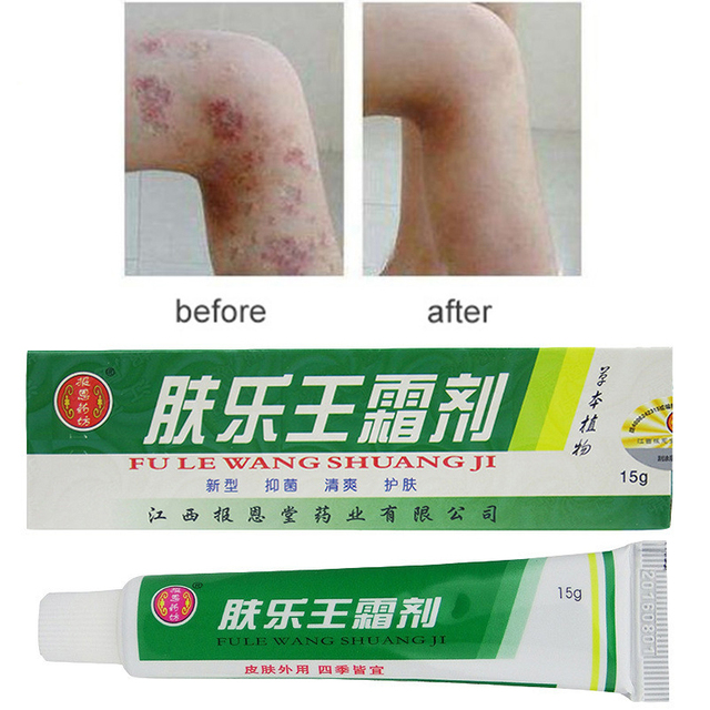 Material à base de plantas Cremes Psoríase Dermatite Prurido Eczema Psoríase Pomada Creme Para o Corpo Sem Caixa de Varejo