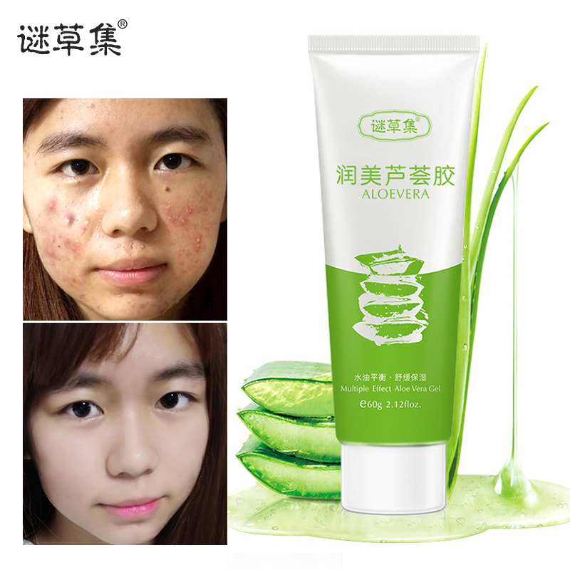 MICAOJI Aloe Vera Smooth Gel Acne Treatment Hyaluronic Acid Face Cream for Hydrating Repair After Sun Whitening Sleeping Mask