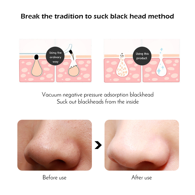 Face Acne Black Dot Pimple Blackhead Remover Electric Microcrystalline Blackhead Vacuum Cleaner Pore Blackhead Skin Care Machine 2