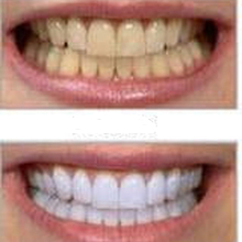 Biggest Promotion 2pcs Teeth Whitening Tools, Whitening Teeth Gel Pen Oral Hygiene Cleaning Tooth Bleach Stains Remove Instant