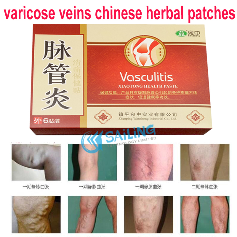 12 pieces Chinese Herbal Treatment Varicose Veins Plaster Spider Veins Varicose Vasculitis Natural Solution Massage herbal muscle