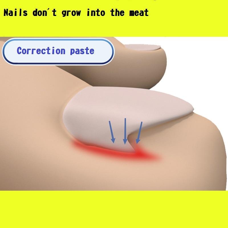 Nail Treatment Nail correction paste