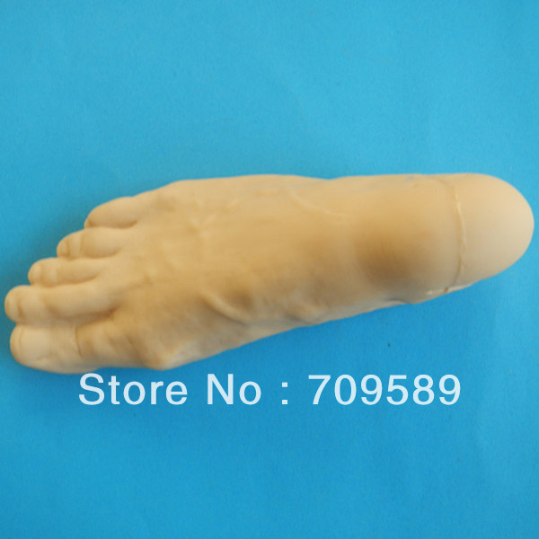 ISO Advanced Diabetes Mellitus Foot Model, Diabetic Foot Care Model