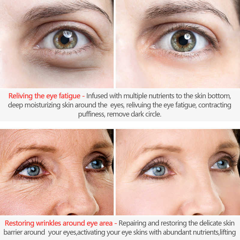 Korea Perawatan Kulit Anti Kerut Krim Mata Enam Peptida Serum Anti Aging Remover Lingkaran Gelap Tas Firming Menutrisi Eye Balm masker 20G