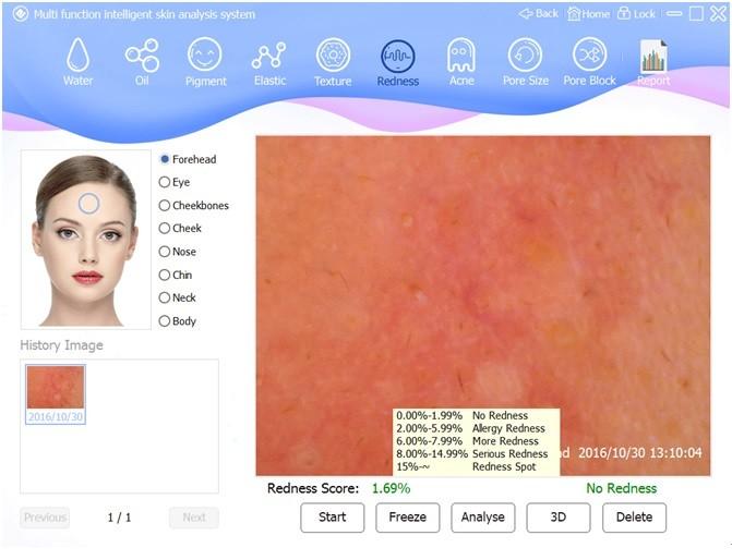 skin analyzer special