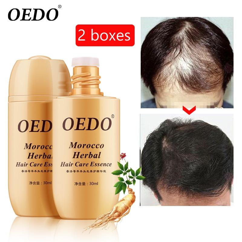 2PCS/lots Growth anti Hair Loss Liquid 30ml dense hair fast
