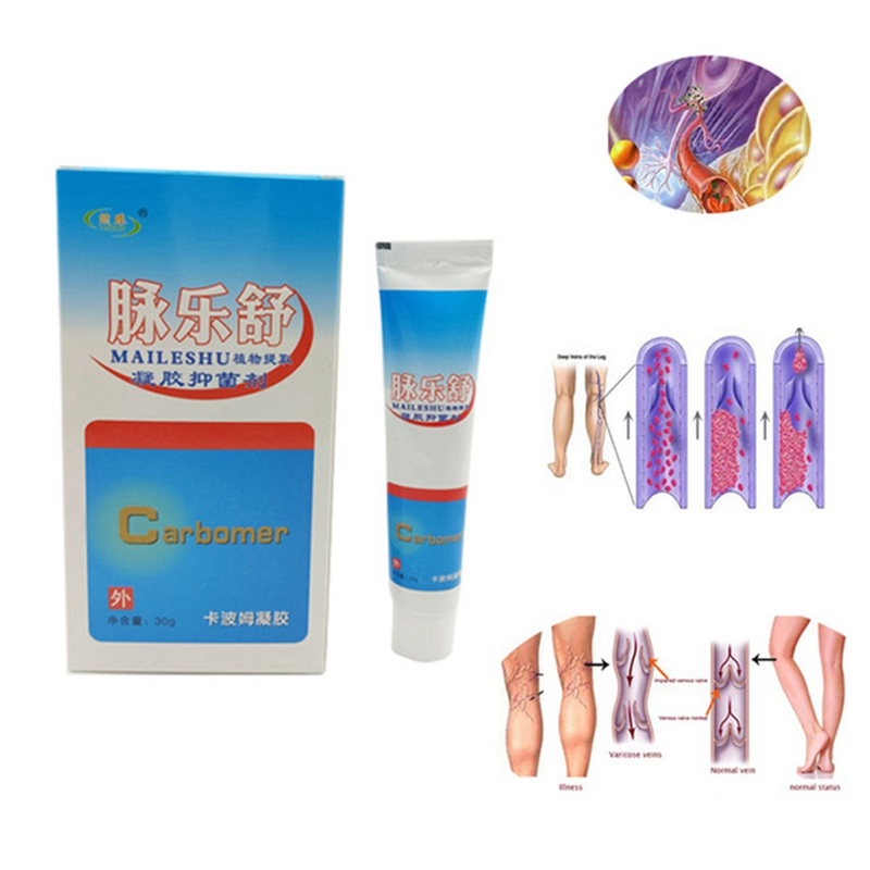 Aliexpress.com : Buy Varicose Veins Cream Of Varicose ...