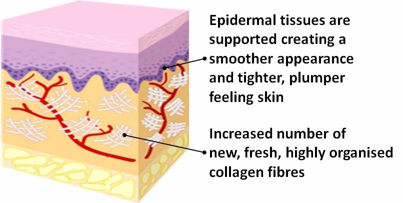 rf-skin-tightening-after